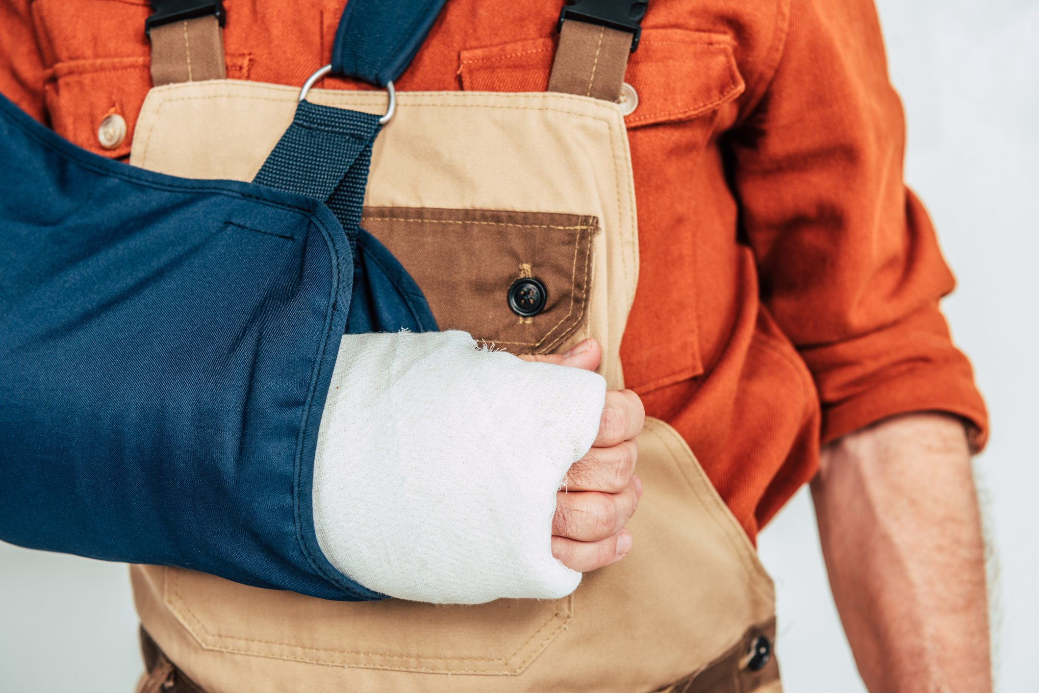 A person with a broken arm after a personal injury in Clifton, NJ.